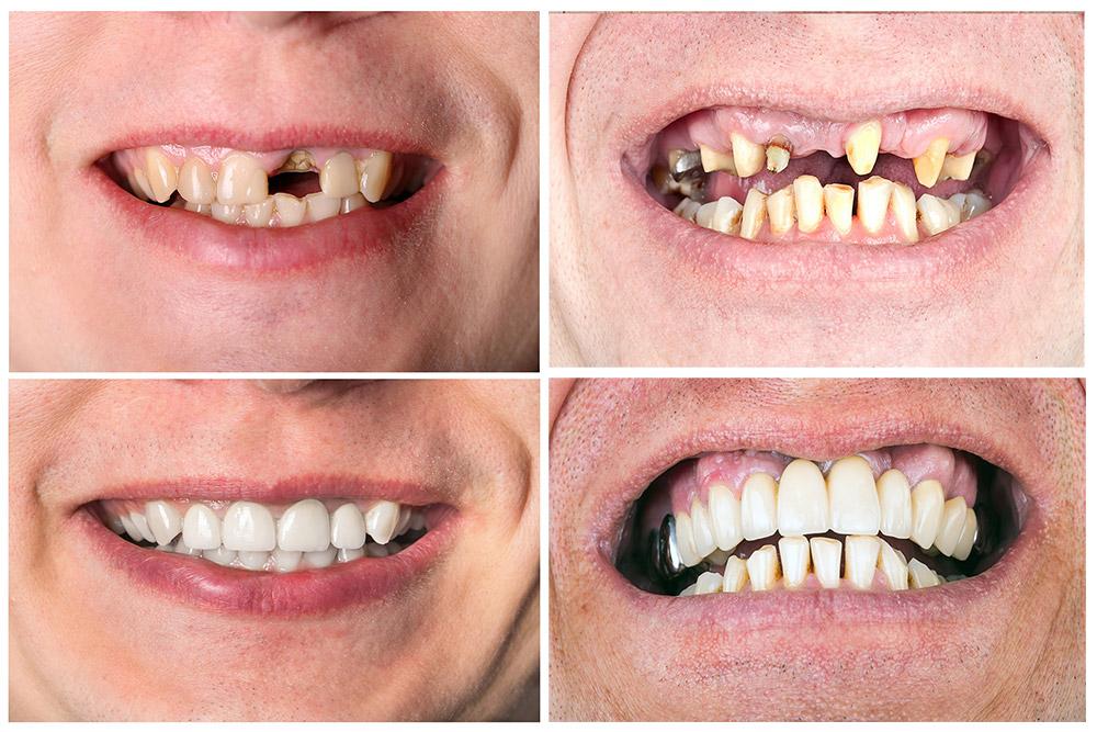 วิธีแก้เมื่อสูญเสียฟัน