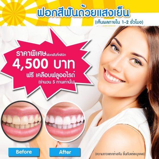 โปรทำฟัน_ฟอกสีฟันด้วยแสงเย็น