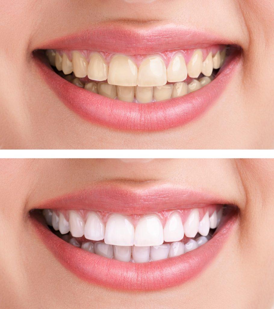 ผลการค้นหารูปภาพสำหรับ ฟอกฟันขาว
